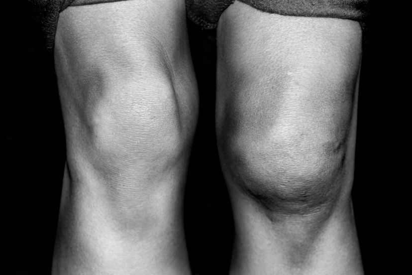 Patellar Tendinitis: Three Ways To Fix Your Knee